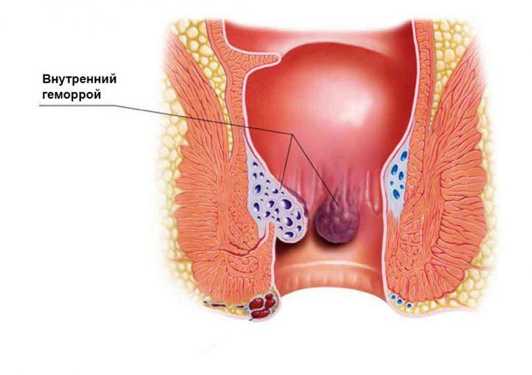 Тромбоз геморроидальных узлов: лечение