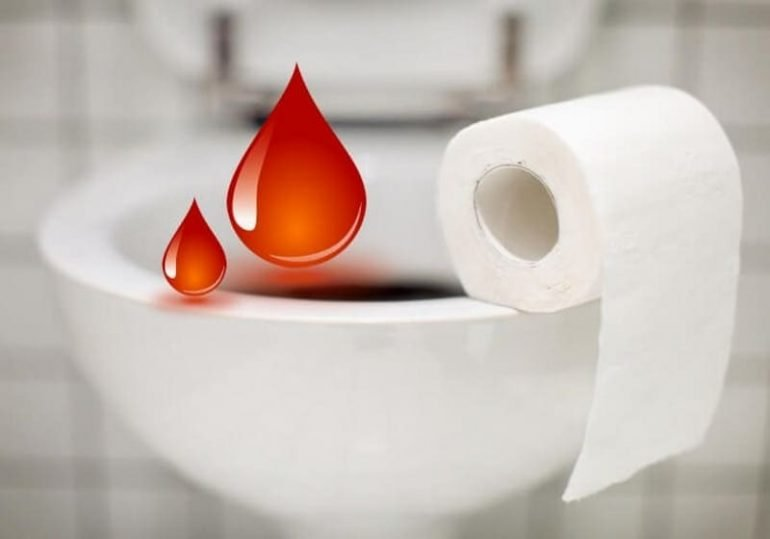 Почему появляется кровь в кале после родов?