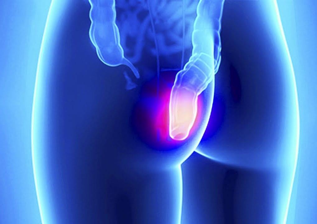 Наружный геморроидальный узел фото: лечение в домашних условиях