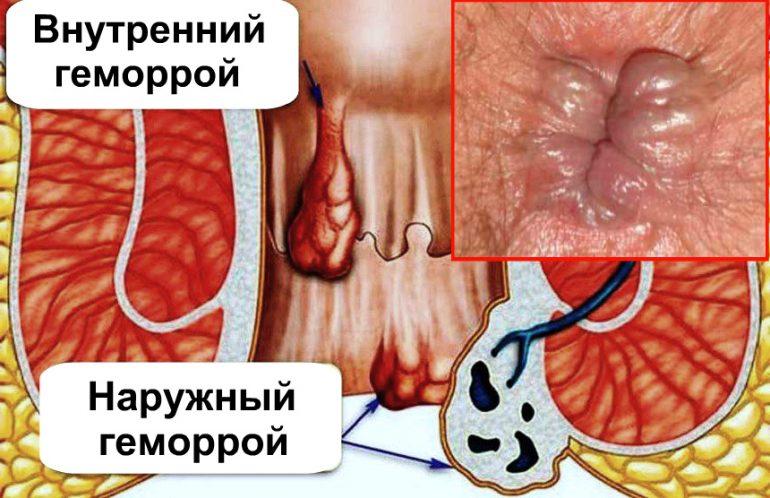 Особенности применения кремов при лечении геморроя