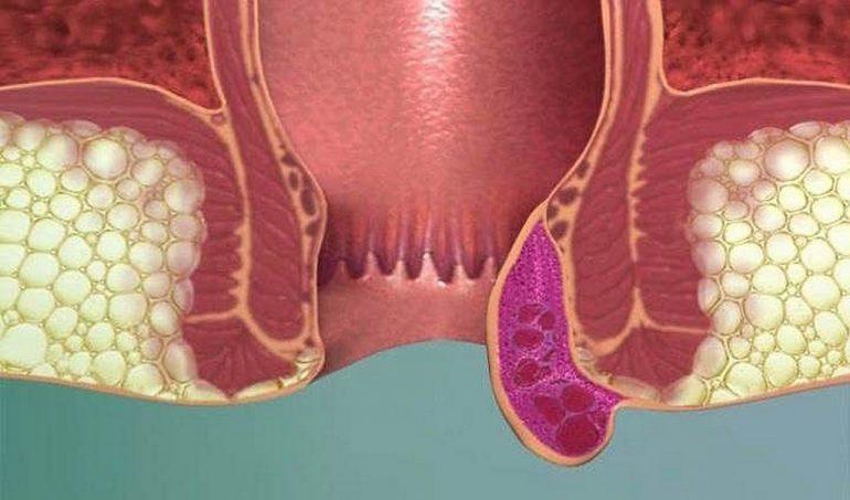 Симптомы тромбоза геморроидального узла