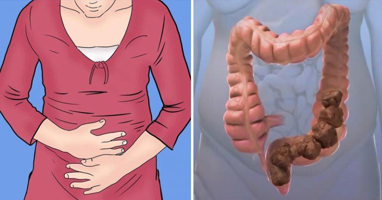 Тромбоз геморроидального узла: причины