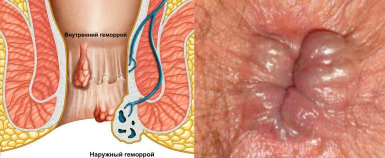 Симптомы и лечение ущемления геморроидального узла